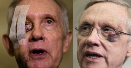 Was Harry Reid Literally Beaten Into Retiring? Pictures Indicate 2 Separate Beatings
