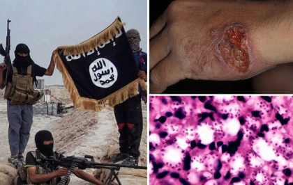 Flesh Eating Plague Hits ISIS